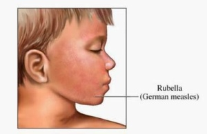Rubella (German measles) Causes, Symptoms, Diagnosis, Treatment, Prevention (1)